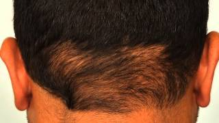 Disadvantages of Strip Surgery vs FUE Advantages - Forhair Video