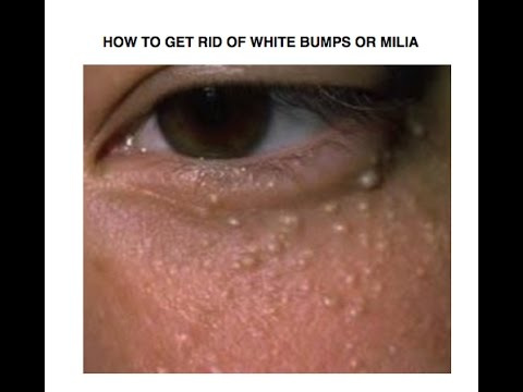 Natural Cure For Milia At Home  White Bumps are also called