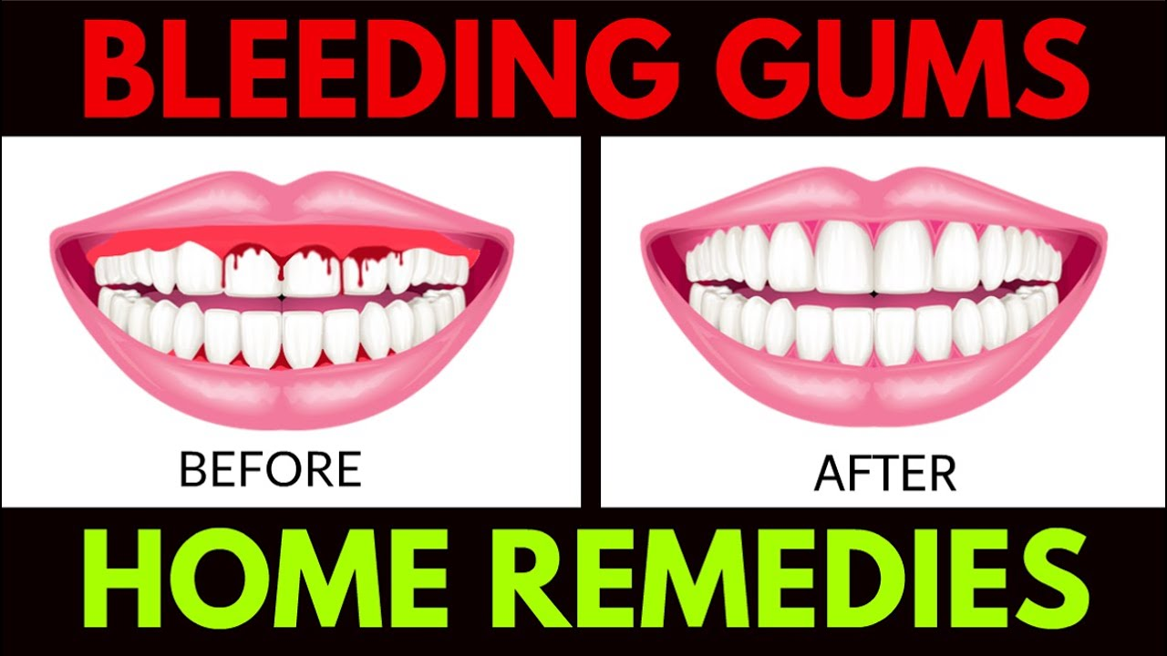 Bleeding Gums Home Remedies Treat Your Bleeding Gums At Home Youtube