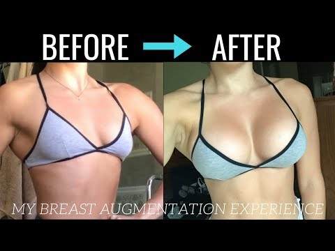 MY BREAST AUGMENTATION EXPERIENCE – Process, Recovery & Details!