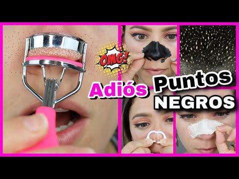 elimina-puntos-negros-|-trucos-y-remedios-caseros-para-puntos-negros-|-natygloss