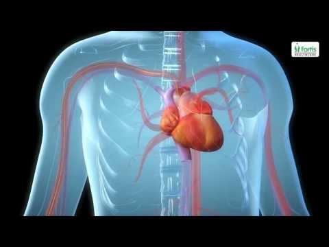 Angioplasty Procedure Animation Video.