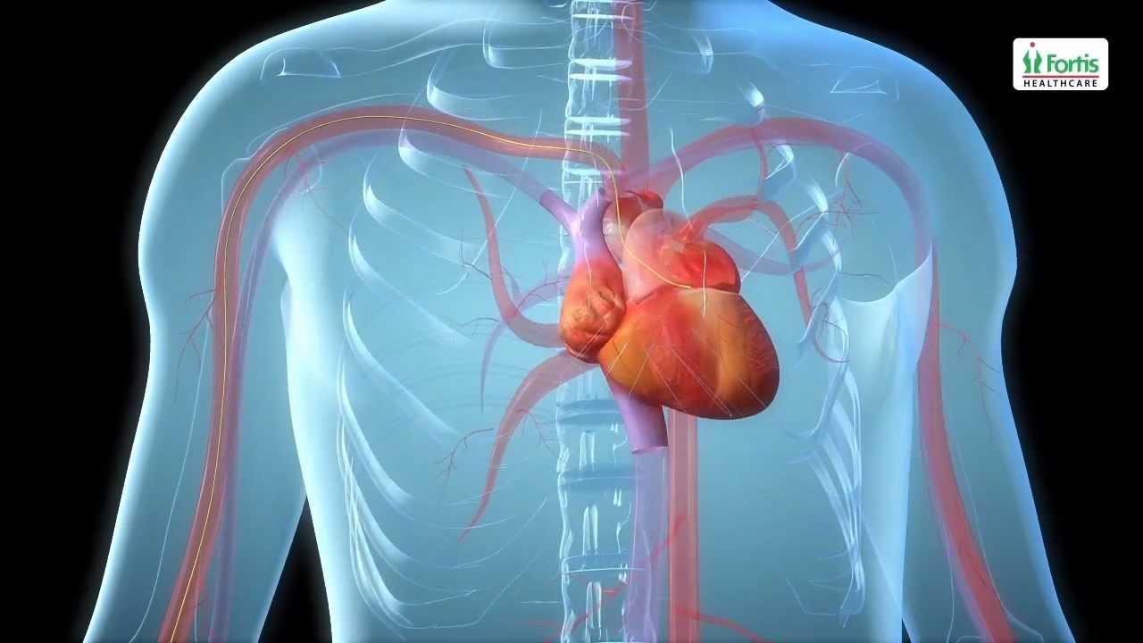 Angioplasty Procedure Animation Video