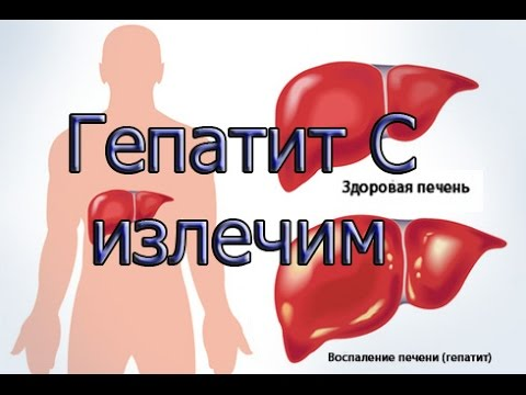 Лечение гепатита С!