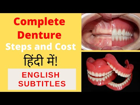 Complete denture procedure in Hindi by Dr Akash Shah