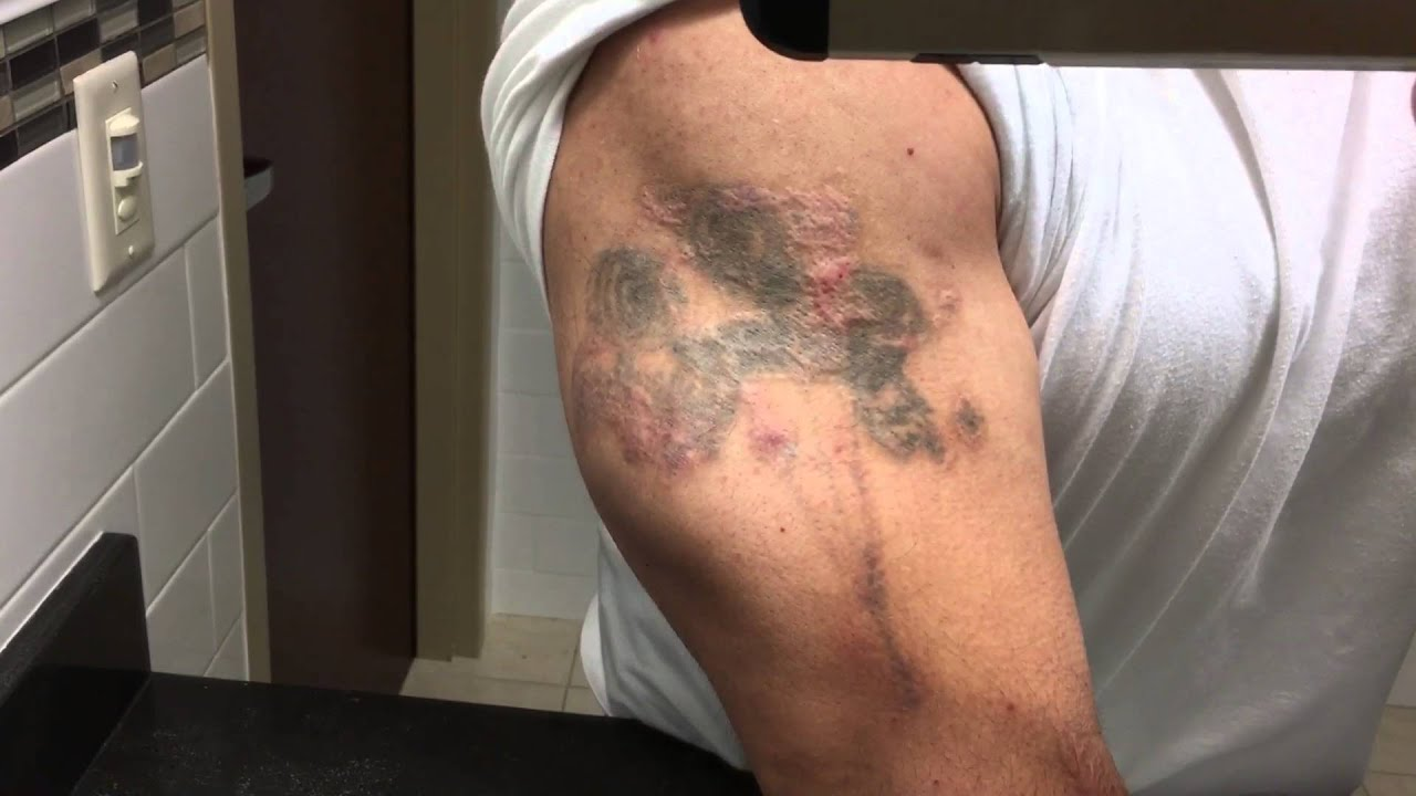 TCA 50% Tattoo Removal - 1 Year Update - YouTube