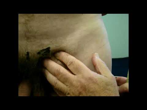 Groin Pain / Strain - A Chiropractors view (UK) from YouTube · Duration:  1 minutes 35 seconds