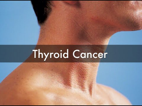 Signs Of Cancerous Small Nodule On Thyroid