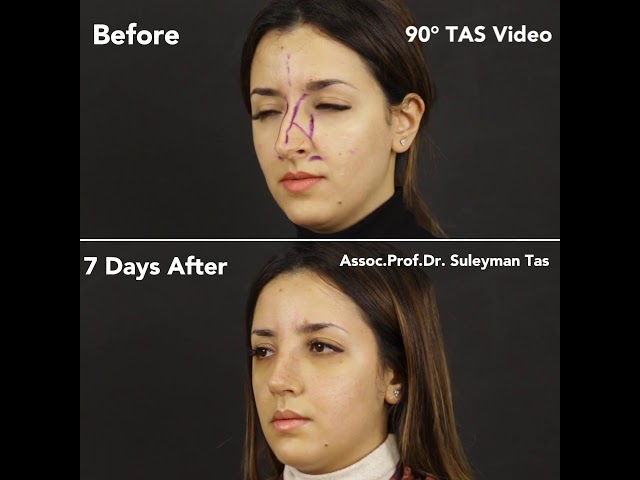 Before and 7 Days After Nosejob