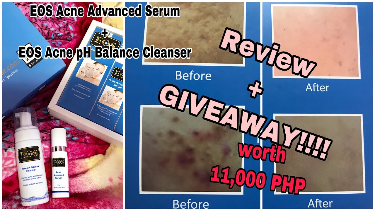Eos Acne Scar Cleanser Serum Review Giveaway Bye Acne Hi