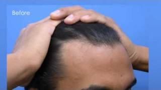 Hair Transplant Video - Dr Hasson - 3200 Grafts - 2 Sessions