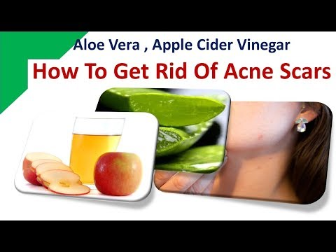 how-to-get-rid-of-acne-scars---aloe-vera,-apple-cider-vinegar