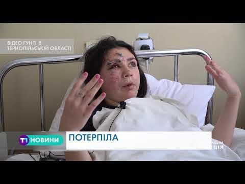 «Кримінальні новини» Тернопільщини 20.04.2019