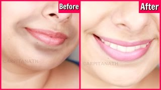 Remove Dark, Black Patches Around Mouth in 15 Minutes || Get Rid of Hyper-pigmentation