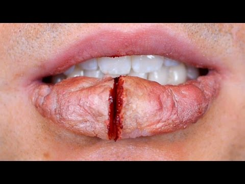 HUGE BUSTED LIP!