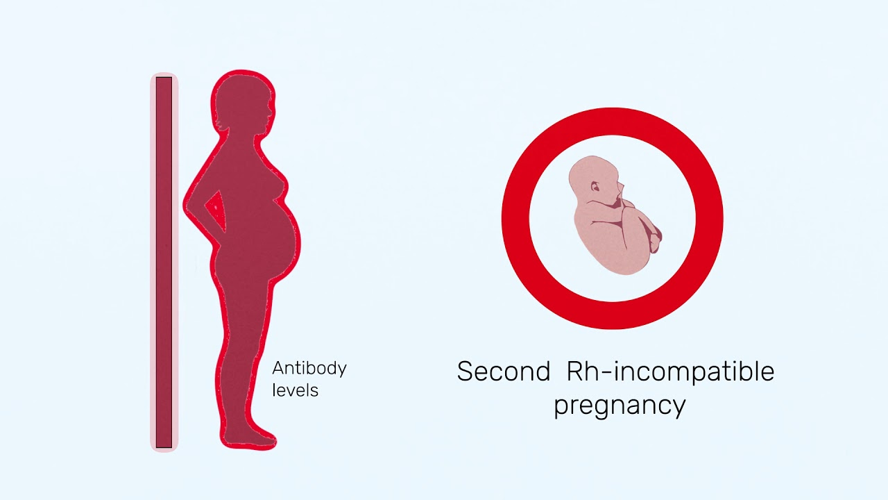 How Rh factor affects a pregnancy