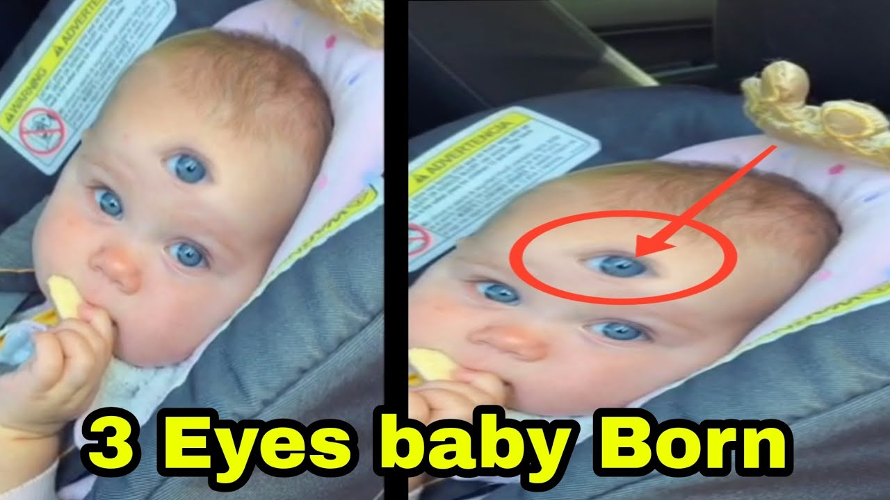 Baby Born With 3 Eyes Viral Video.|