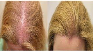 видео Народные средства от выпадения волос у женщин, домашнее лечение выпадения волос, маски