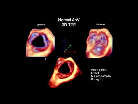3D Echocardiography Acquisition, Cropping, and Case Examples