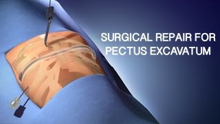 Pectus Excavatum Chirurgische Reparatur | Ein Cincinnati Children ' s Medical Animation