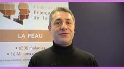 Maladie de Verneuil – Les traitements – Dr Z  Reguiai