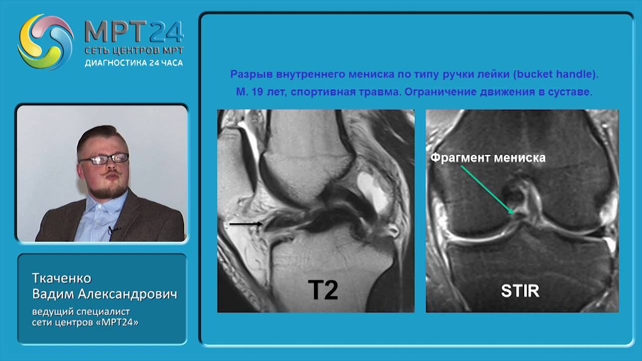 Сустав диагностика смт на коленный сустав