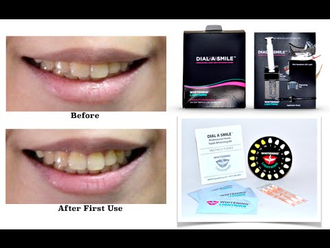Whitening Lightning: Dial A Smile Demo & Review - YouTube