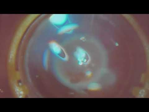 Оперативное лечение пролиферативной диабетической ретинопатии