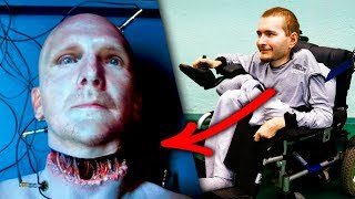 The First Human Head Transplant Was Successful? The truth - You Are Here