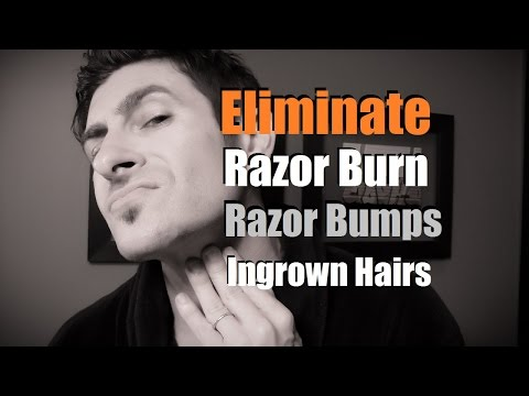 How To Eliminate Razor Burn, Bumps and Ingrown Hairs | Razor Burn Prevention