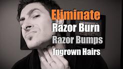 hqdefault - What Causes Razor Burn Pimples