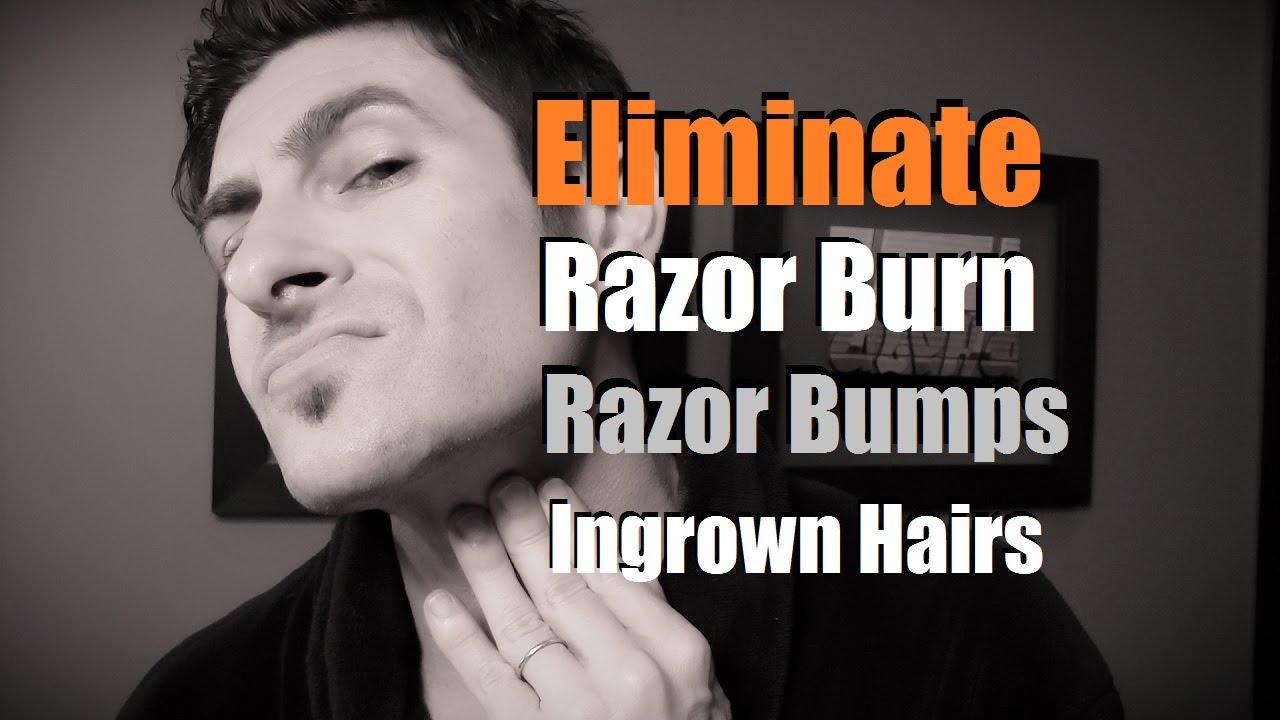 How To Eliminate Razor Burn, Bumps And Ingrown Hairs  Razor Burn  Prevention  Youtube
