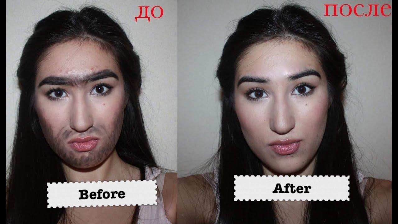 как удалить волосы на щеках