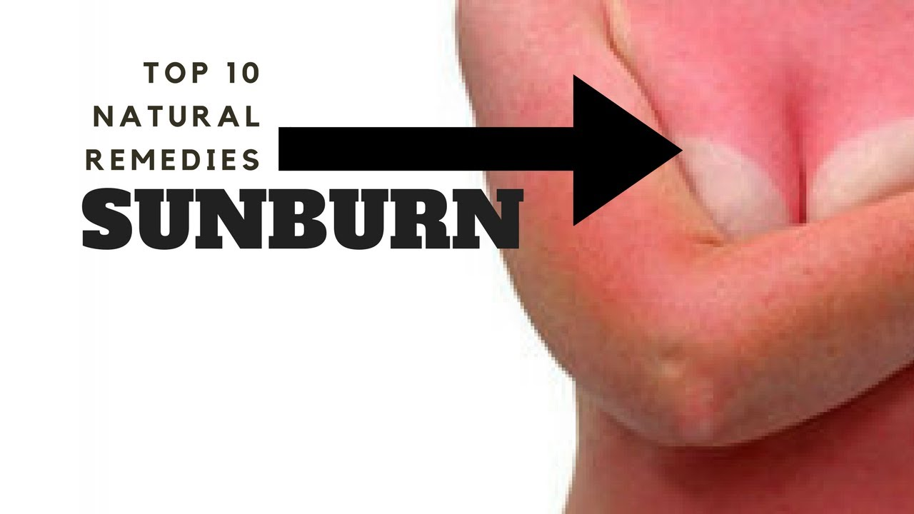 Forum on this topic: 6 Home Remedies to Soothe a Sunburn, 6-home-remedies-to-soothe-a-sunburn/