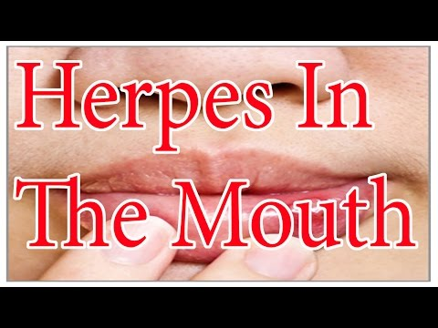 Herpes In The Mouth  | :  ► Oral Herpes Symptoms And Treatment
