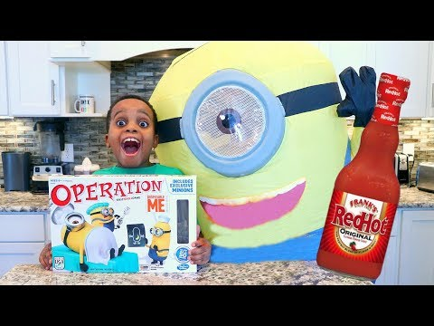 MINION OPERATION GAME CHALLENGE! Loser gets HOT SAUCE 🔥- Toy Game Challenge - Onyx Adventures