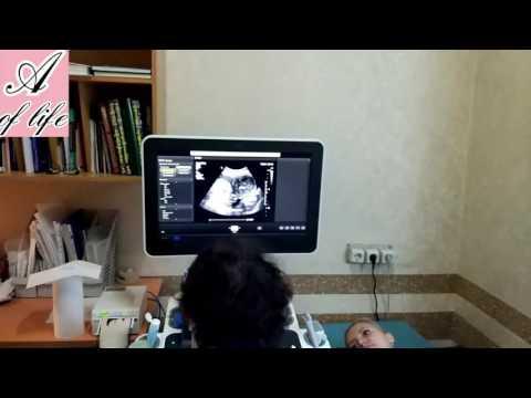 УЗИ 17 недель беременности. Скрининг 17 недель, пол ребенка
