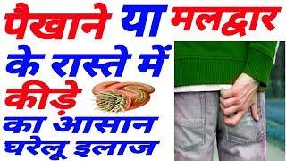 पखाने के रास्ते में कीड़े का आसान घरेलू इलाज | Maldwar Me Kide Ho Jana Ilaj | Stomach Worms Hindi Pet