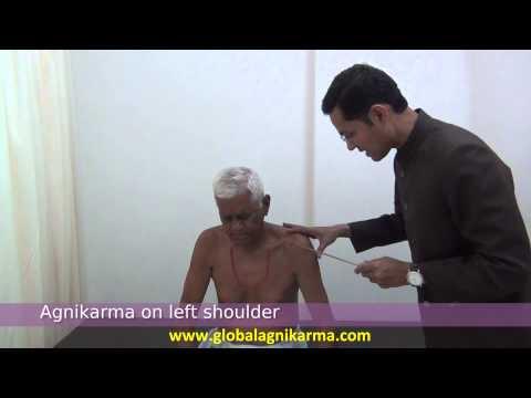 Shoulder Pain  Frozen Shoulder gets 100 Improved by Agnikarma  Ayurveda Pain Management Trearment