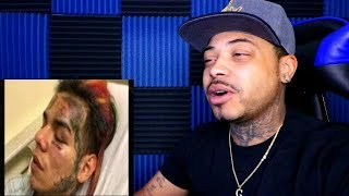 6ix9ine Got Pistol Whipped and Robbed In Brooklynn