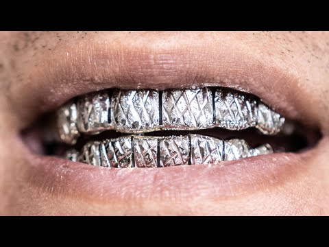 CUSTOM GOLD GRILLZ | WHAT YOU NEED TO KNOW