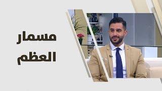 د. احمد العموري - مسمار العظم