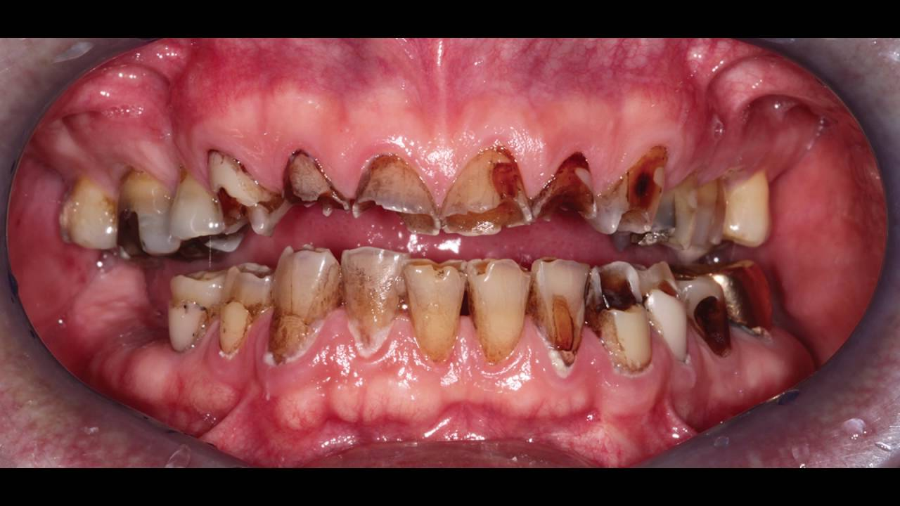Crowns or veneers 29