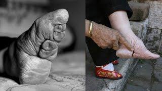 ЖЕСТОКАЯ И МУЧИТЕЛЬНАЯ КИТАЙСКАЯ ТРАДИЦИЯ БИНТОВАНИЯ НОГ У ЖЕНЩИН