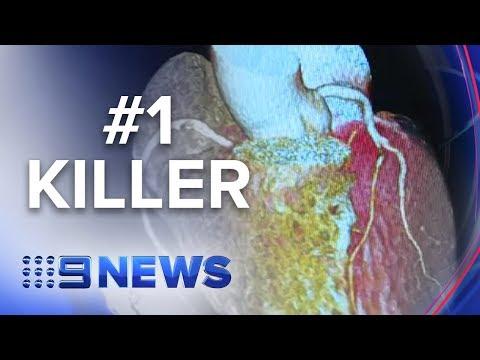 Tackling Heart Disease   Nine News Australia