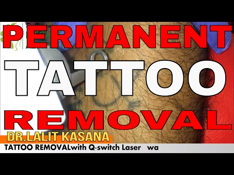 PERMANENT TATTOO REMOVAL BY LASER