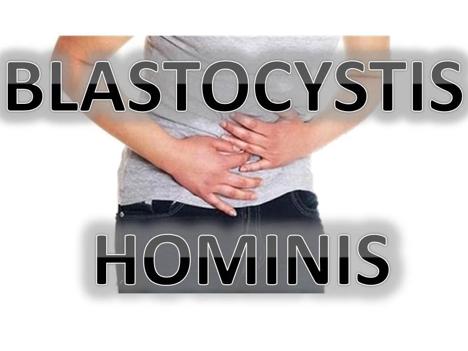 Tratamiento natural para blastocystis hominis en adultos