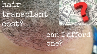 How to Afford A Hair Transplant / Hair Transplant Cost / Hair Loss Treatment