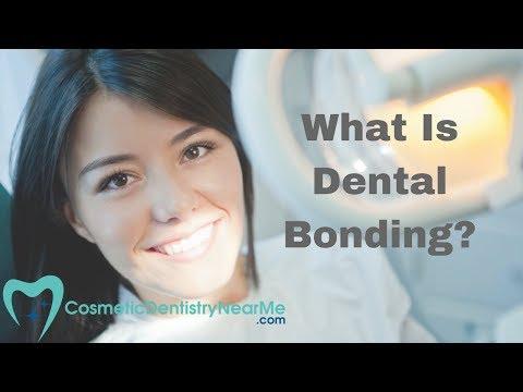 What Is Dental Bonding?