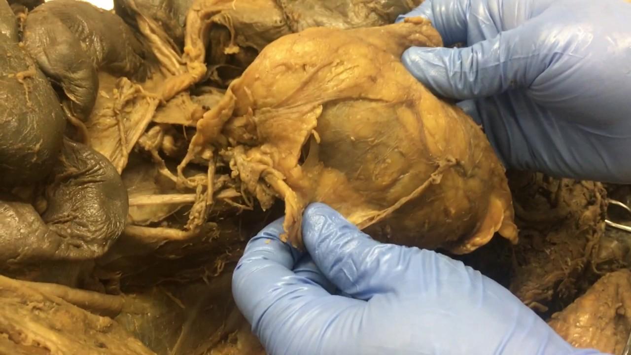 Anatomía renal: riñón in situ, relaciones y vejiga urinaria - YouTube